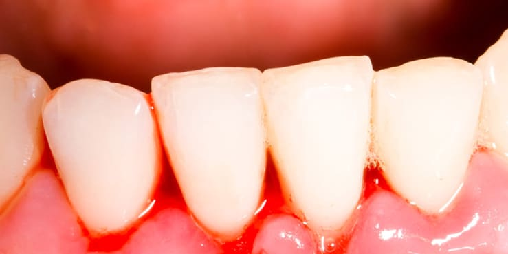 Bleeding gums call Blacktown Dentist