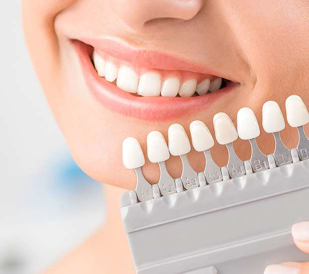 Dental Veneers: What To Expect During The Treatment?